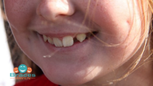 Barrhaven Orthodontist - how to tell if your child needs braces